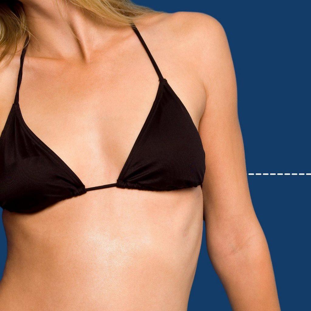 Cirugías estéticas femeninas
